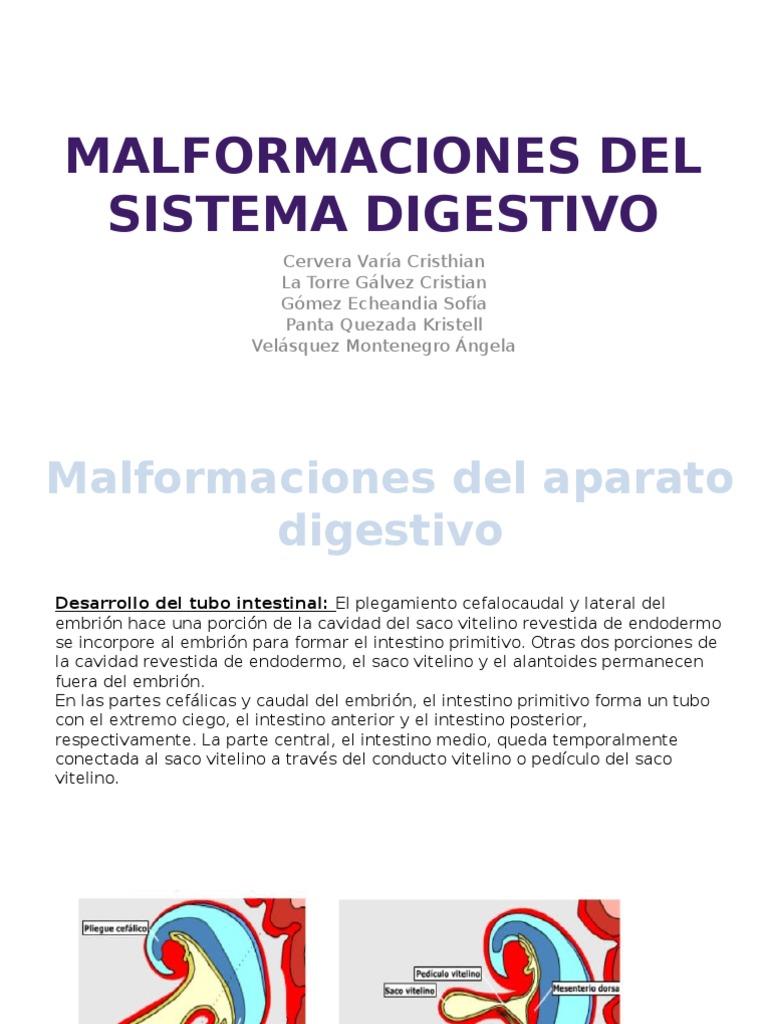 Malformaciones del sistema digestivo