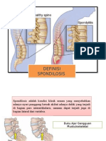 Definisi Dan Etiologi Spondilitis Pipit