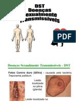 Doenças sexualmente Transmissiveis