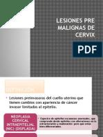 Lesiones Pre Malignas de Cervix