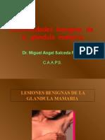 1 mama enfermedades-benignas-de-la-glandula-mamaria-1220080326977127-9.ppt