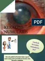 Keratitis Numularis