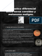 Diagnostico Diferencial Entre Nevus Coroideo y Melanoma Maligno
