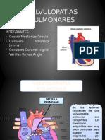 Valvulopatias Pulmonares