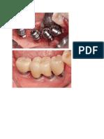 Rehabilitation of the Atrophic Posterior