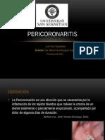 Pericoronaritis