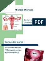 miomas_uterinos
