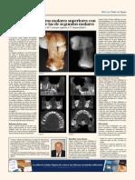 Estudios de la Tercera Molar.pdf