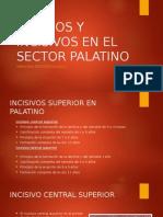 CANINOS Y INCISIVOS EN EL SECTOR PALATINO.pptx