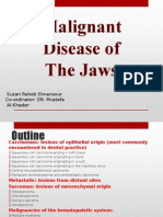 Malignant Disease of the Jaws