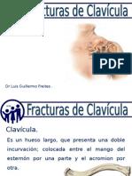 fractura clavicular
