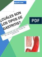 Los Tipos de Gastritis