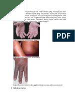 Dermatitis Kontak Referat Besar