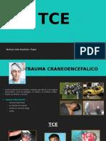 Inmovilizaciones TCE
