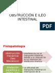 Obstrucción e Ileo Intestinal