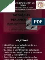 Patologías Periapicales