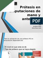 Prótesis en Amputaciones de Mano y Antebrazo