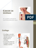 cancer esofagico