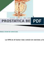 hiperplasiaprostaticabenigna ppt