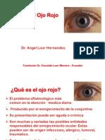 ojo rojo- oftalmologia