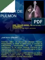 Cancer de Pulmon Angel
