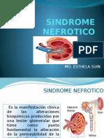Sindrome Nefrotico en Pediatria2