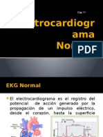 35.- Cap 11 EL EKG