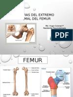 Fx -Femur Proximal