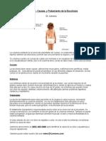 Quiropractico Oxnard - Sintomas, Causas, y Tratamiento de la Escoliosis