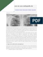 10 Signos Clave en Una Radiografía de Tórax