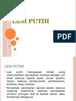 Lesi Putih (White Lesion)