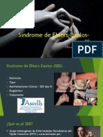 Síndrome de Ehlers-Danlos- Tipo III