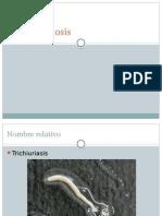 Tricocéfalosis