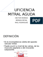Insuficiencia Mitral Aguda