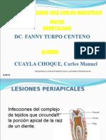 lesionesperiapicgfdgdfales-091101015351-phpapp02