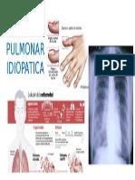 FIPBROSIS PULMONAR IDIOPATICA