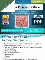 anemia drepanoctica