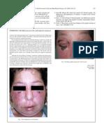 Kelly 2005 British Journal of Oral and Maxillofacial Surgery