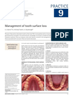 Management of Tooth Surface Loss (by Bruxism)