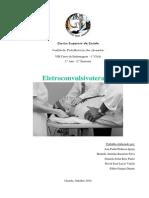 Eletroconvulsivoterapia