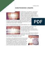 1. Enfermedad Periodontal I (15.03.15)