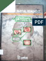 Prótese Parcial Removível