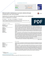 Fiducial Marker Implantation in Prostate Radiation Therapy - Complication Rates and Technique