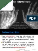 Y Artritis Reumatoide
