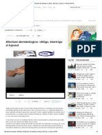 Afectiuni Dermatologice_ Vitiligo, Intertrigo Si Lupusul _ Citynews Bistrita