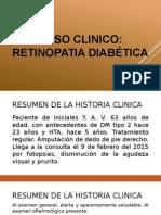 Retinopatia Diabetica Caso Clinico- peru