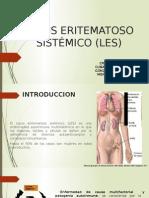 Lupus Eritematoso Sistémco (Les)