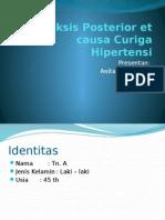 Epistaksis Posterior Et Causa Curiga Hipertensi Dan Kelainan
