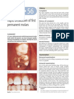 56.Rapid breakdown of first permanent molars.pdf
