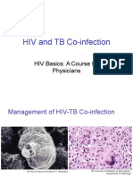 Hiv&Tbcoinfectionf